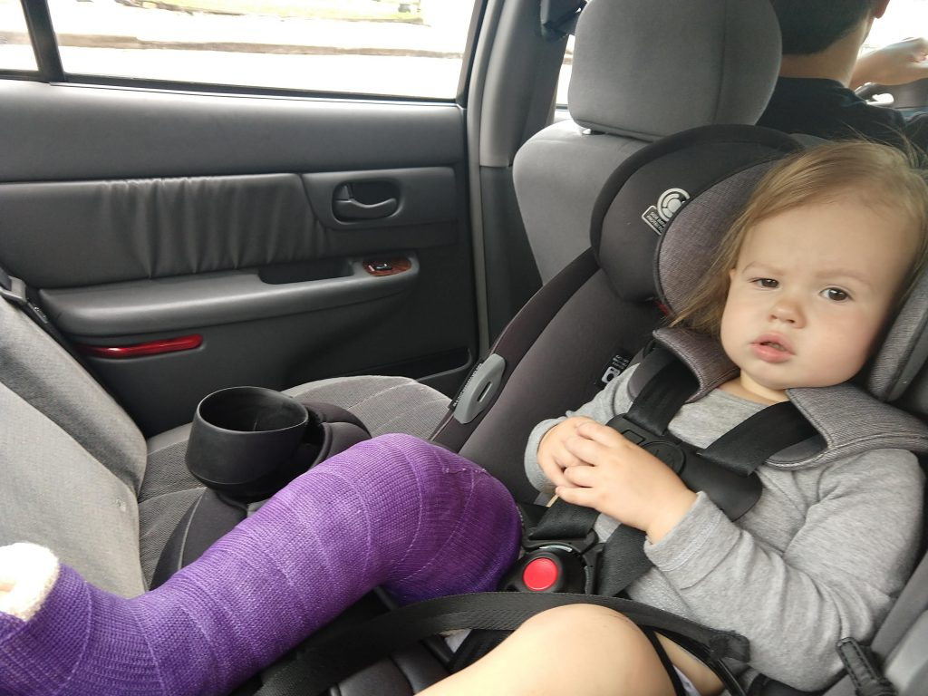 Baby girl in a cast